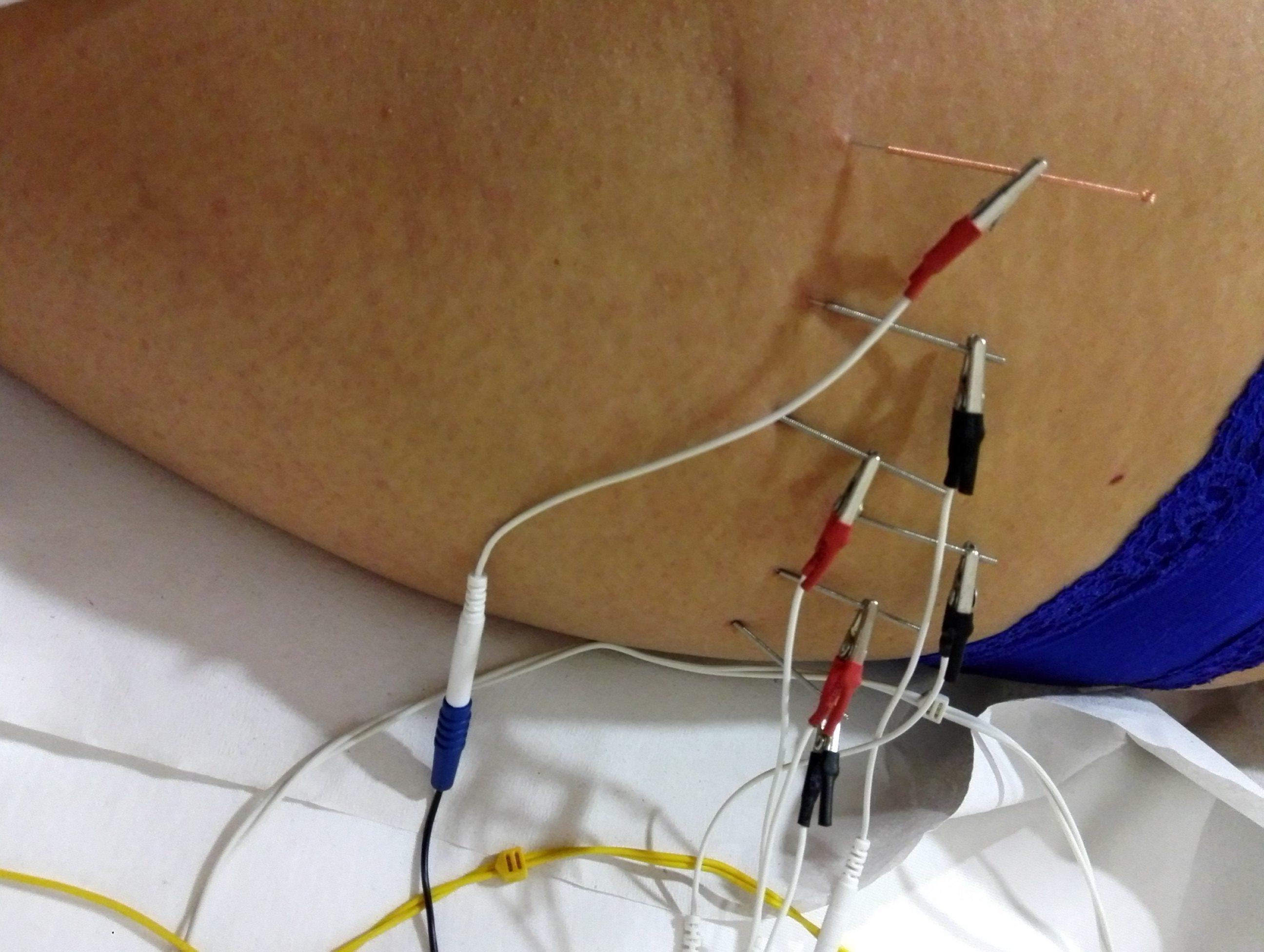 Tratamiento de celulitis de muslos, electrolipolisis, altaivida, maxim popovich